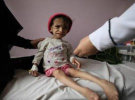 Saudi airstrikes cause stillbirths and miscarriages in Yemen